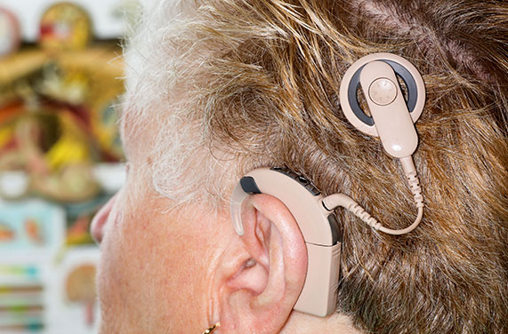 Patient wearing a cochlear implant